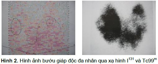 hinh-anh-buou-giap-doc-da-nhan-qua-xa-hinh-i-131-va-tc-99m