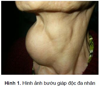hinh-anh-buou-giap-doc-da-nhan