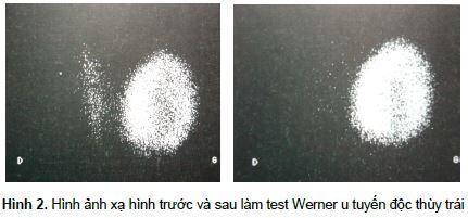 hinh-anh-xa-hinh-truoc-va-sau-lam-test-werner-u-tuyen-doc-thuy-trai