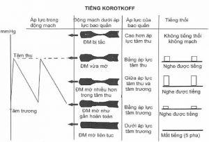 Mối liên quan giữa áp lực trong bao quấn máy đo với tiếng Korotkoff và áp lực động mạch